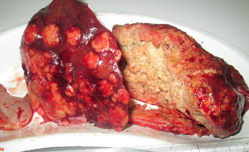 альвеококкоз лечение
