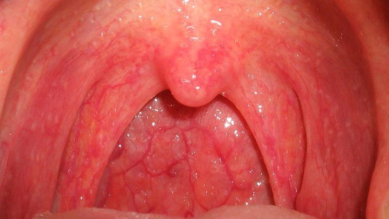 стрептококковая ангина у детей фото
