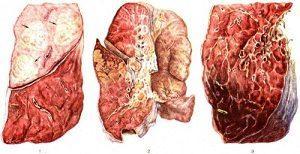 бактерия клебсиелла пневмония