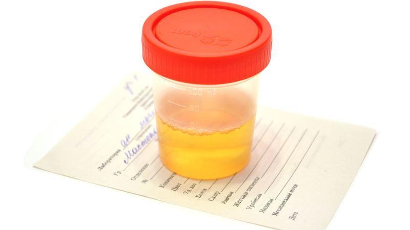 Диплококки: що це таке в мазку, фото бактерій » журнал здоров'я iHealth 2