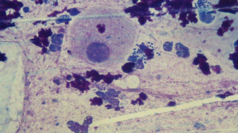 диплококки в мазке у женщин причины появления