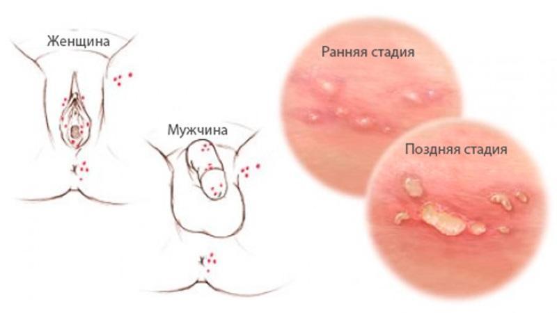 в мазке диплококки внеклеточные