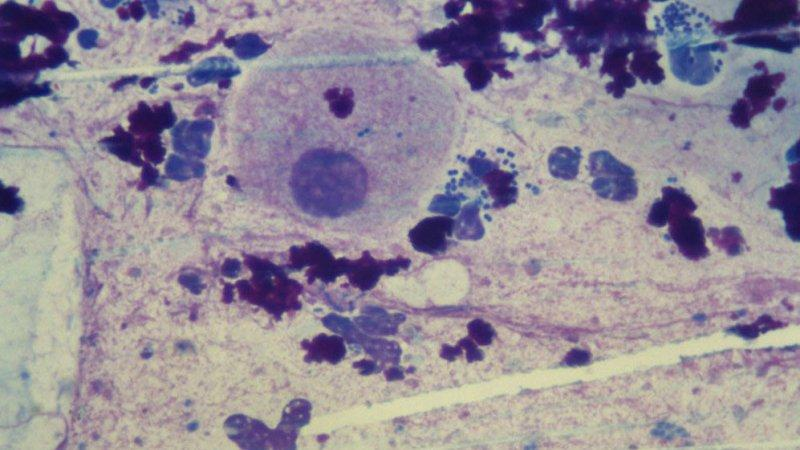 диплококки внутриклеточно в мазке что это такое