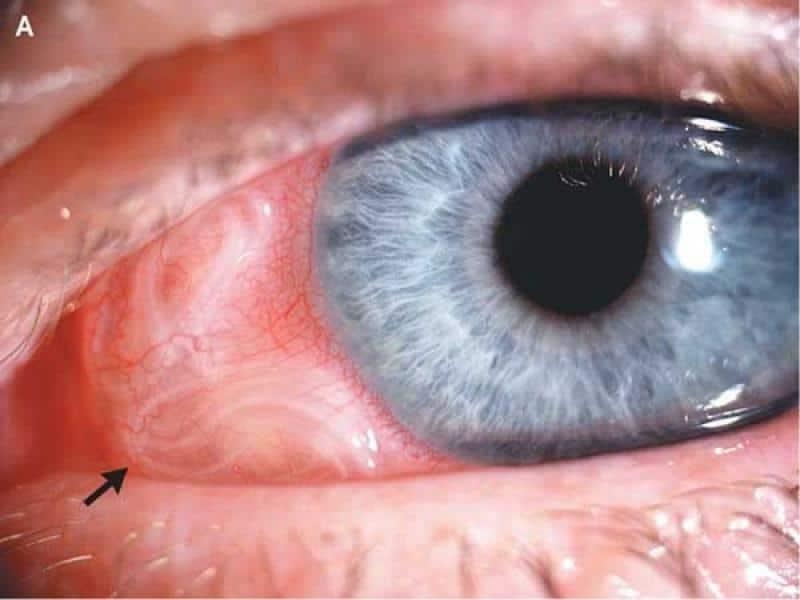 дирофиляриоз у человека симптомы фото