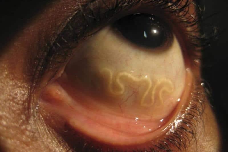 Заболевание дирофиляриоз у человека что это?