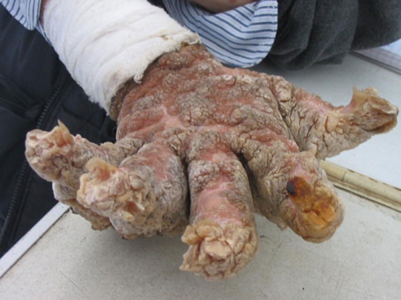 Симптомы филяриоза у человека