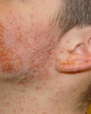 Гемолітичний стафілокок: лікування антибіотиками, симптоми, причини, як лікувати » журнал здоров'я iHealth 2