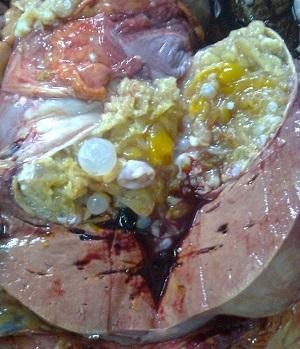 эхинококковая киста печени фото