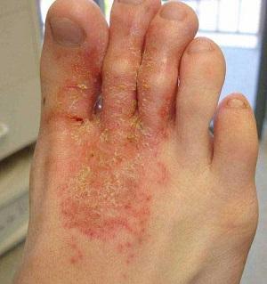 эпидермальный стафилококк симптомы