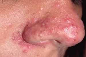 Стафілокок на шкірі дорослих: захворювання епідермальний стафілокок, інфекція, фото висипань » журнал здоров'я iHealth 2