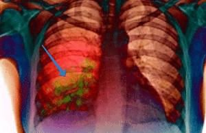 klebsiella pneumoniae что это такое