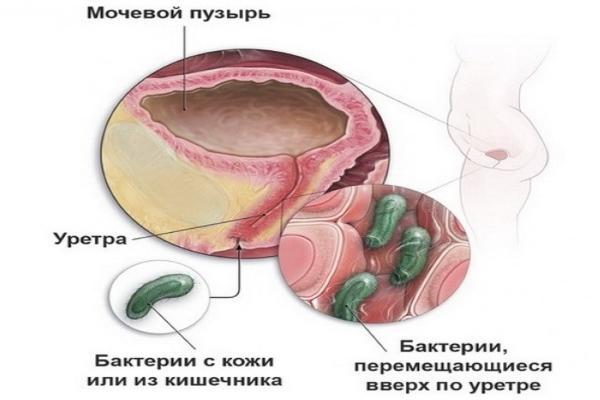 Klebsiella pneumoniae в мазке — Ответы и советы
