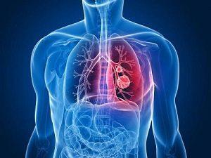 клебсиеллезная пневмония