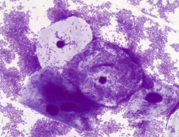 v-zhenskom-vlagalishe-mikrobov
