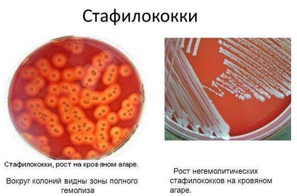 норма золотистого стафилококка в зеве у детей