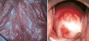 препараты для лечения трихомониаза