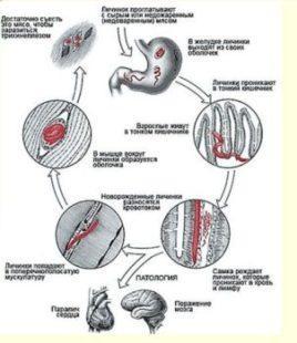 цикл развития трихинеллы