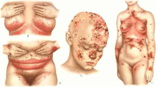 симптомы трихомониаза у детей