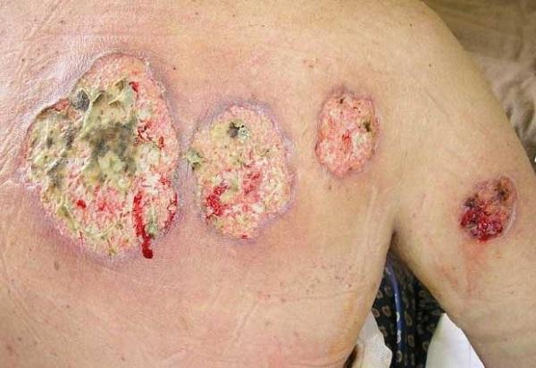 стафилококк поражение кожи