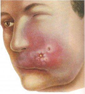 стафилококк симптомы у взрослых