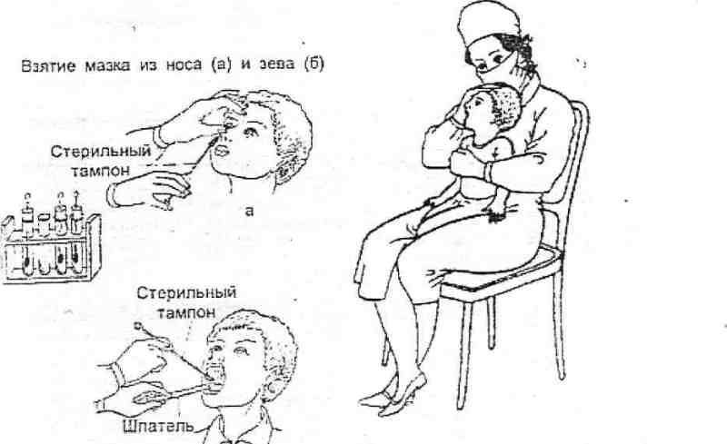 стрептококк в горле фото