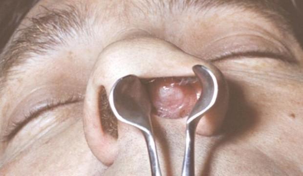 стрептококк в носу у ребенка лечение