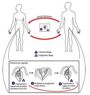 тинидазол отзывы трихомониаз