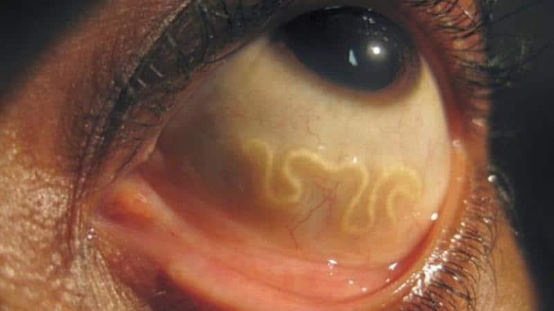 токсокароз у человека симптомы фото