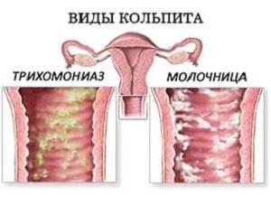Молочница и трихомониаз отличия