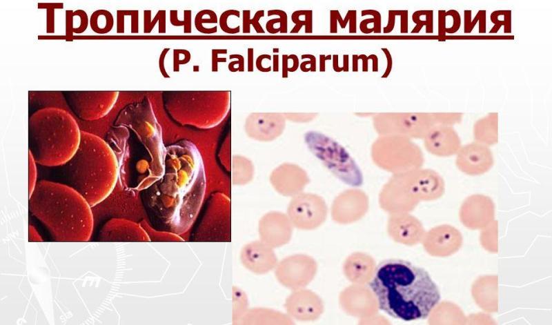 малярия виды плазмодия