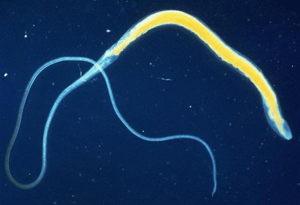 власоглав фото паразита