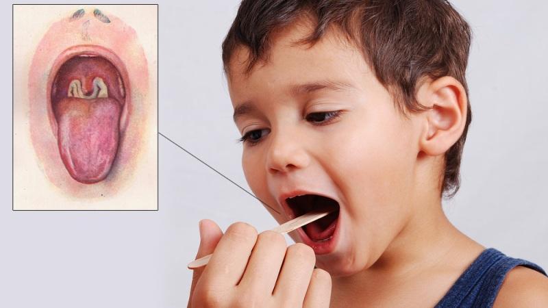 стафилококк в зеве у ребенка