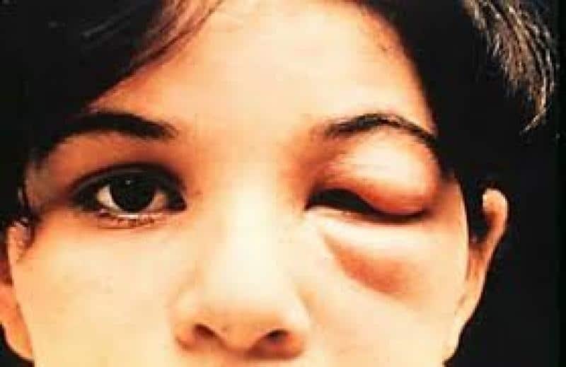 Хвороба шагаса: фото американський трипаносомоз, що це таке, діагностика і симптоми » журнал здоров'я iHealth 1