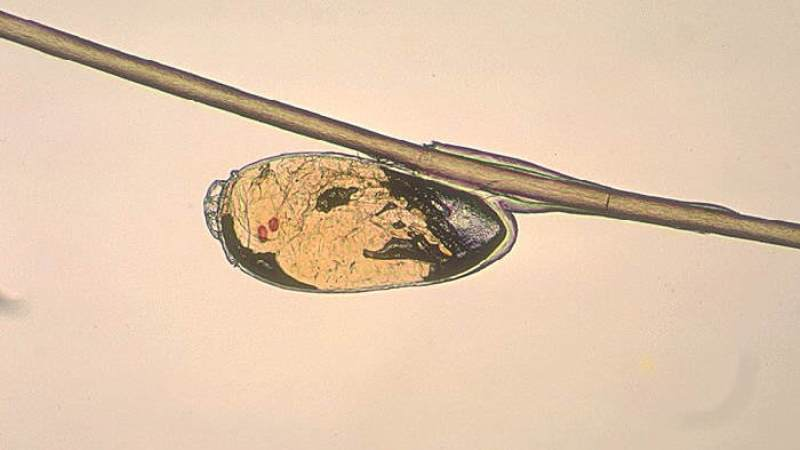 заражение паразитами лечение