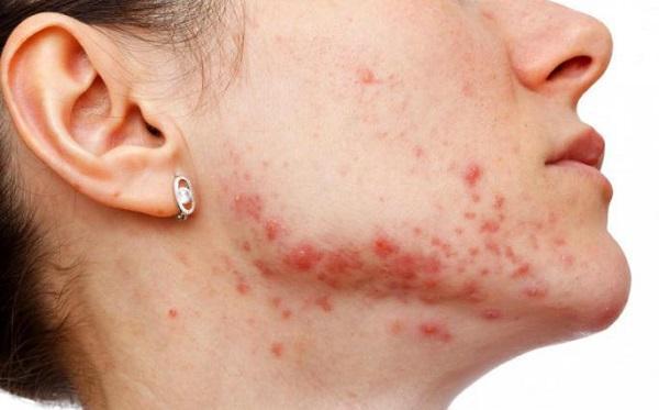 как вылечить стафилококк на коже