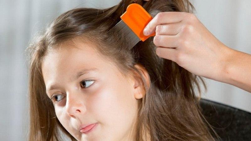 как в домашних условиях вывести вшей и гнид у ребенка в домашних условиях