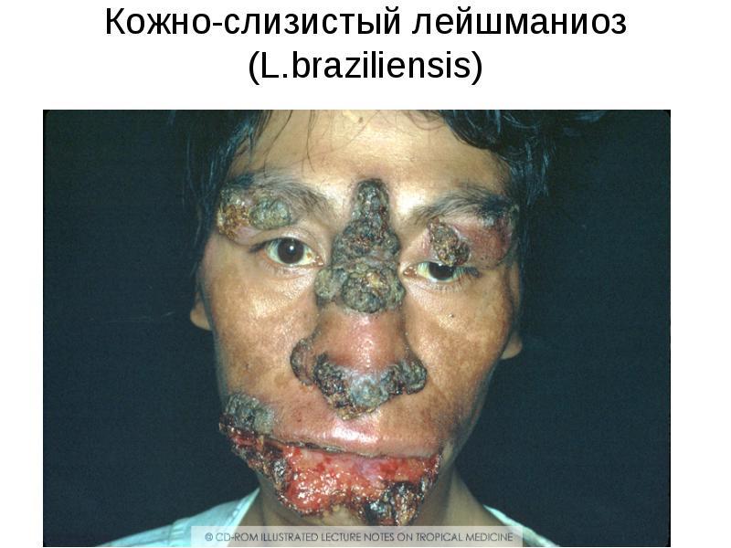 лейшманиоз симптомы у человека