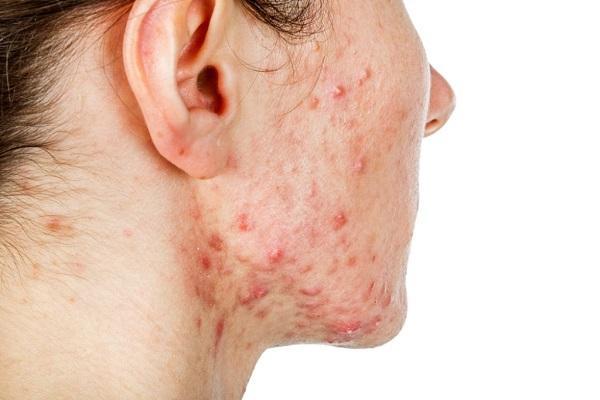 стафилококк эпидермальный на лице
