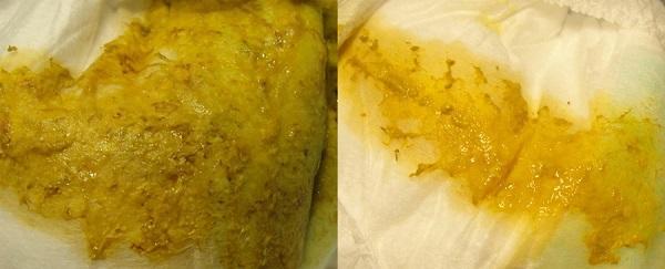 стафилококк в кале у грудничка