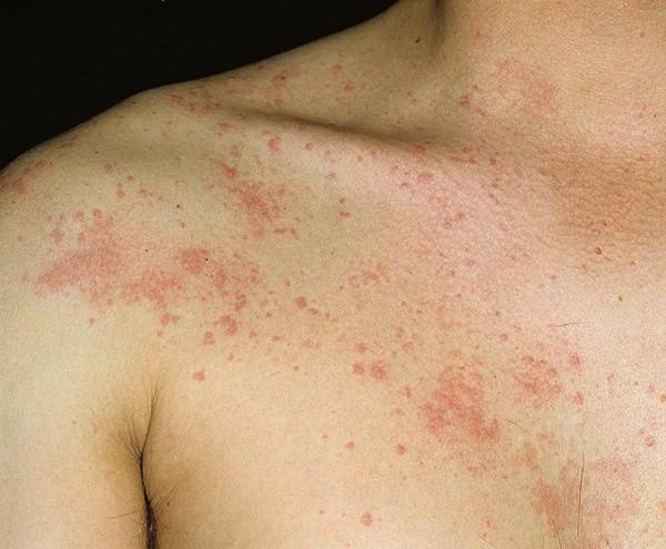 Лечение золотистого стафилококка на коже 28