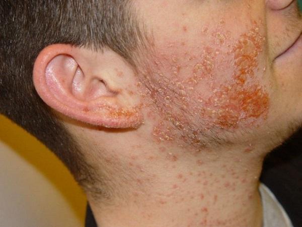 Золотистий стафілокок на шкірі обличчя і голови фото » журнал здоров'я iHealth 1