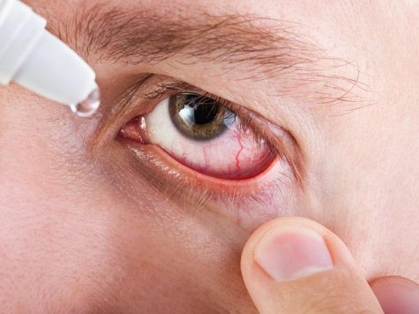 золотистый стафилококк в глазах