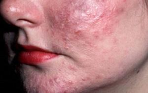 золотистый стафилококк в крови симптомы