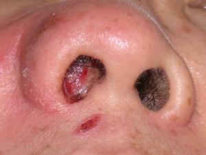 паразиты в носу человека симптомы и лечение