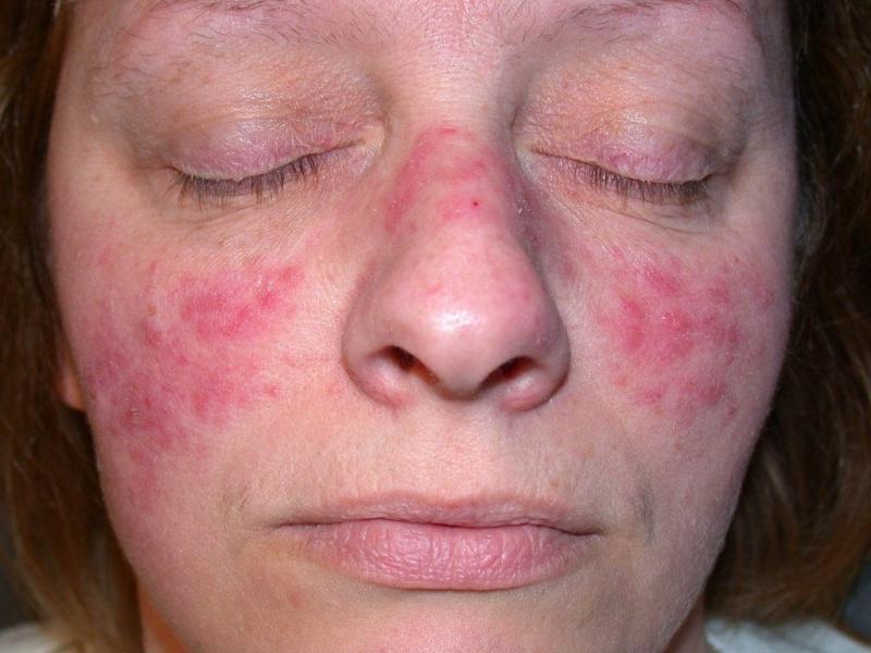 что такое демодекоз кожи лица