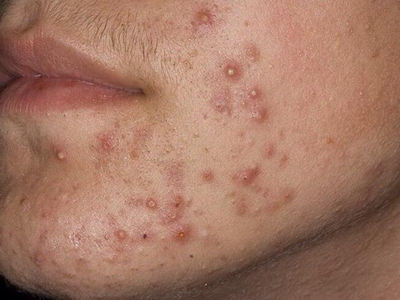 демодекоз фото на лице у мужчин
