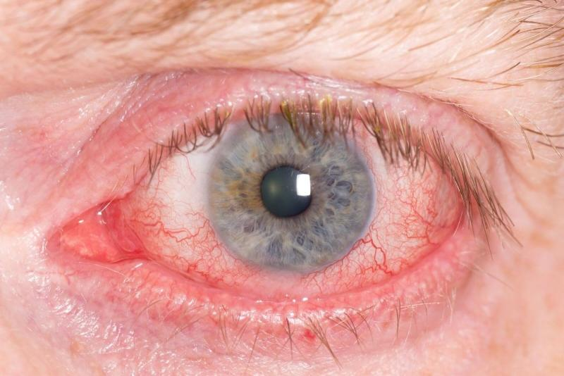демодекоз лечение на лице препараты