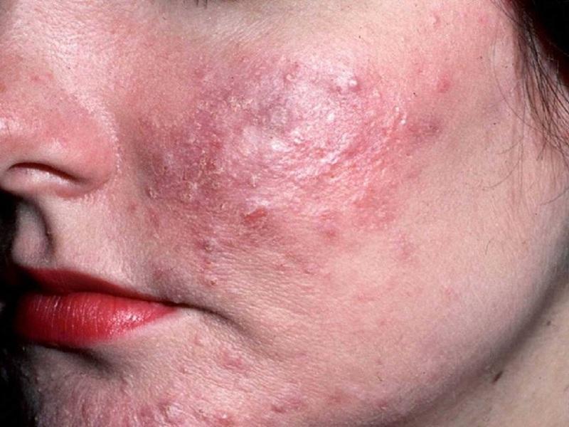 демодекоз симптомы и лечение фото