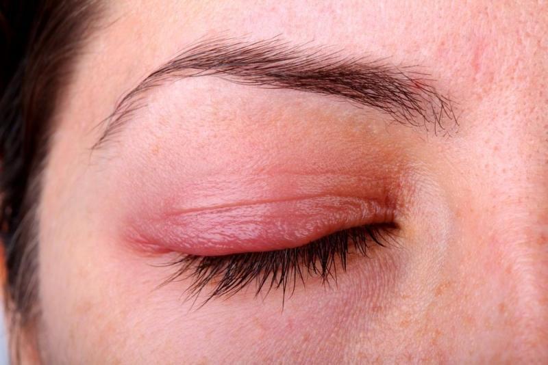 демодекоз симптомы и лечение у человека