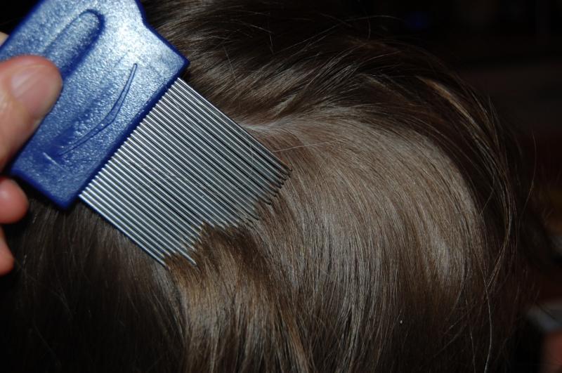 как выглядят вши на волосах у детей